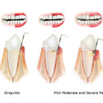 From Gingivitis To Periodontitis: What Causes Gum Diseases?
