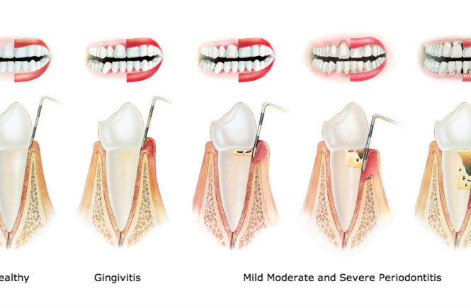 what causes gum diseases