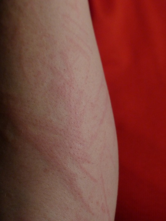 DEET skin irritations harm