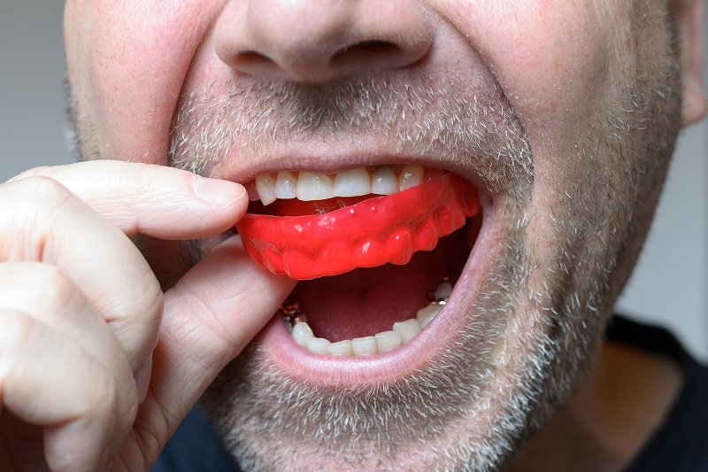 Mouthguards placing in mans mouth