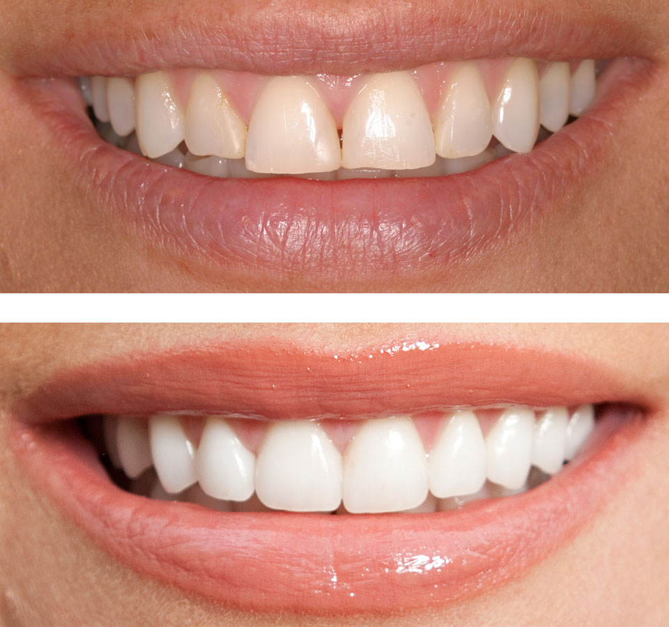 Know how a Cosmetic dentist can change your life! before and after