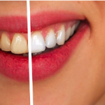 Pearly Whites – 5 Tips to Achieving A More Beautiful Smile