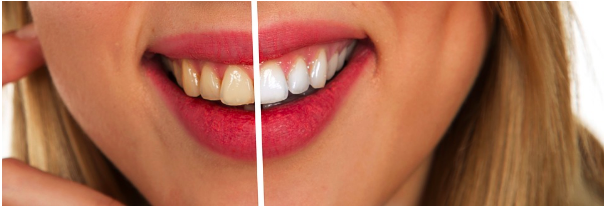 Pearly Whites - 5 Tips to Achieving A More Beautiful Smile