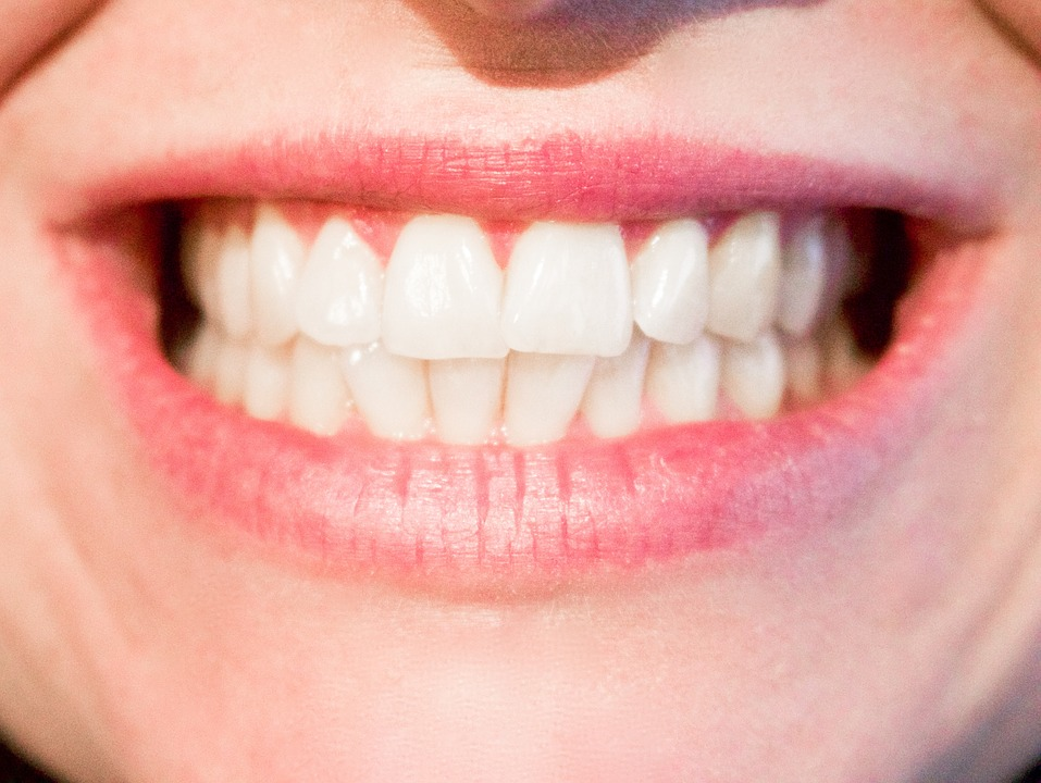 The ultimate guide to teeth contouring